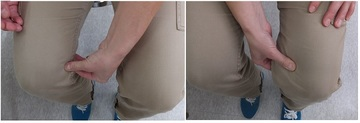 N様の治療前の膝のタルミ.jpg